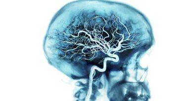 Рецепты для сосудов головного мозга.