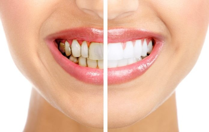 4 смеси, которые полностью удаляют зубной камень