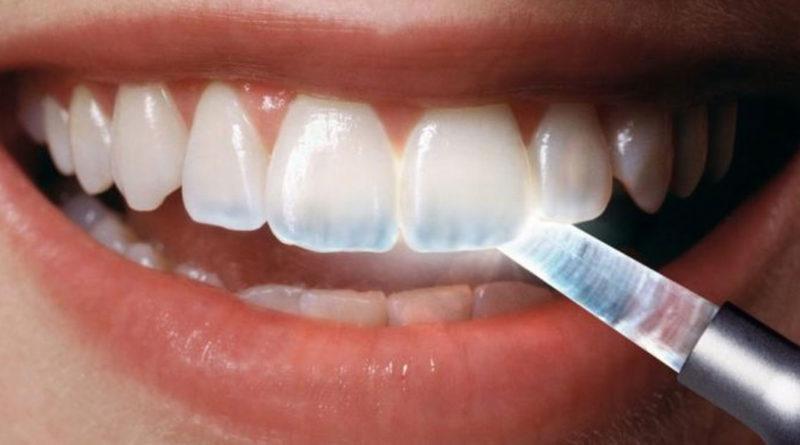 Китайские учёные научились восстанавливать зубы без пломб