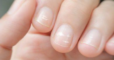 Что за белые полоски и пятна появляются на ногтях?
